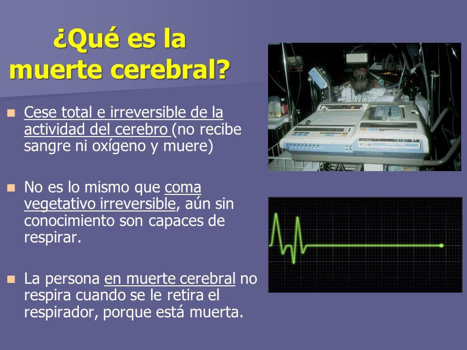 ¿Qué es la muerte cerebral.
