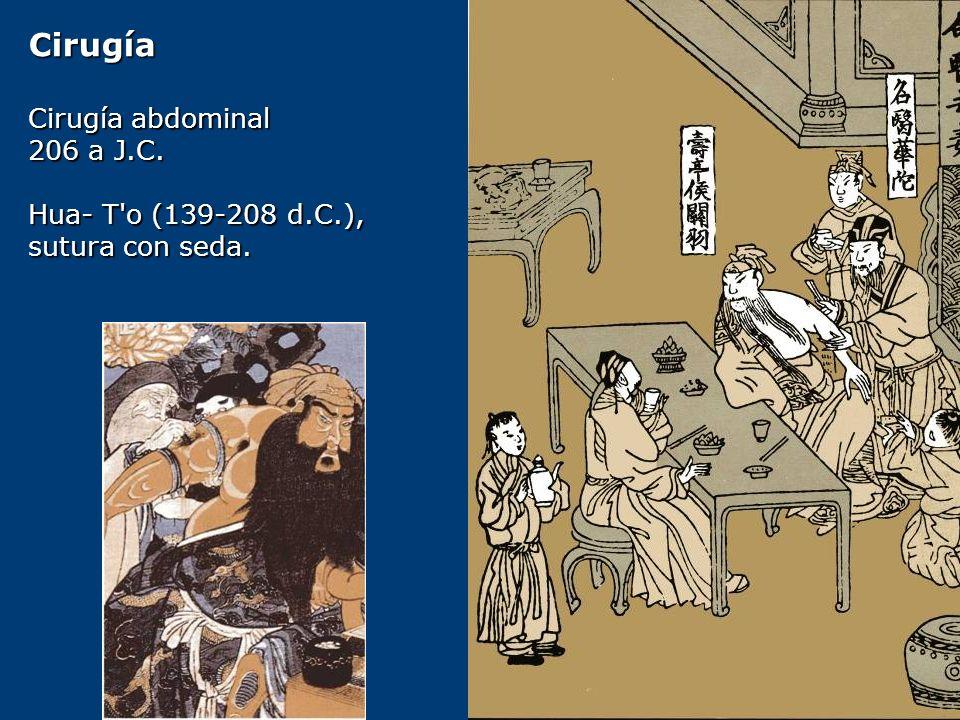 Cirugía Cirugía abdominal 206 a J.C. Hua- T'o (139-208 d.C.), sutura con seda.
