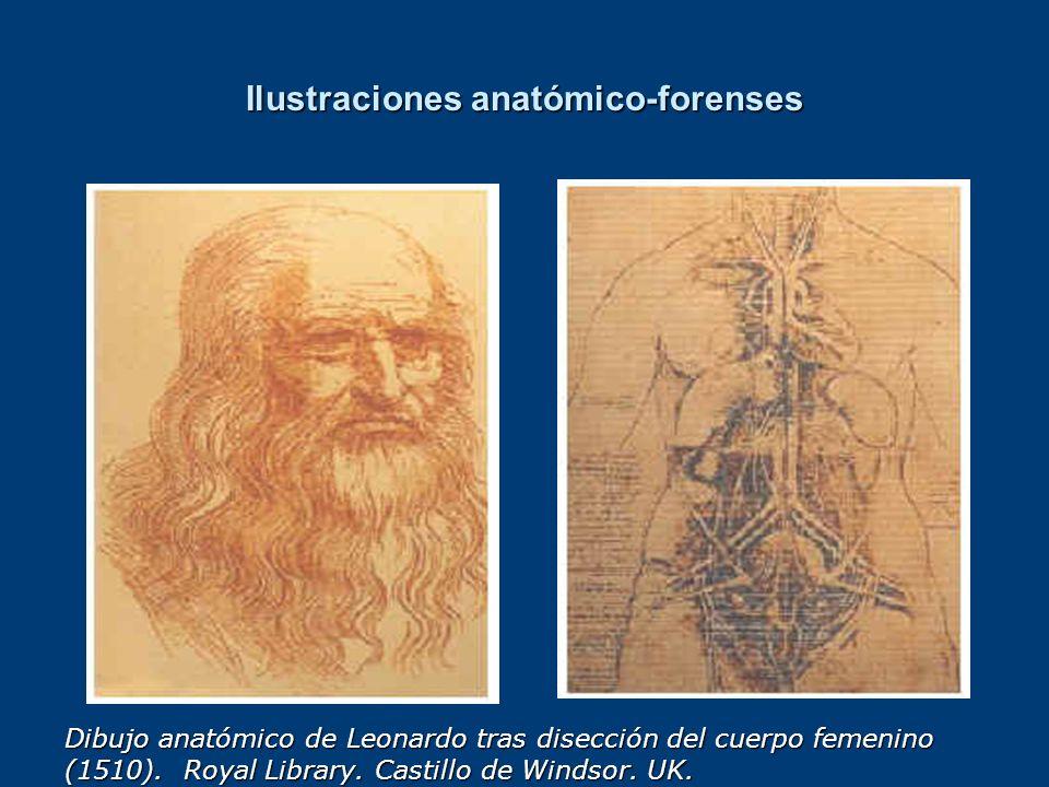 Ilustraciones anatómico-forenses Dibujo anatómico de Leonardo tras disección del cuerpo femenino (1510). Royal Library. Castillo de Windsor. UK.