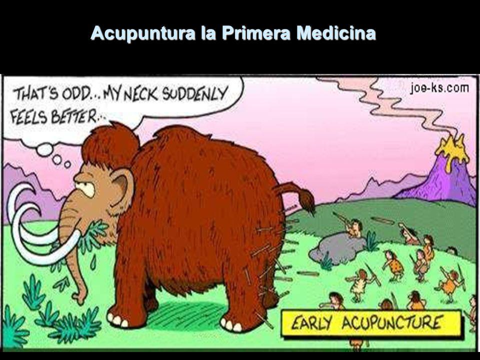 Acupuntura la Primera Medicina