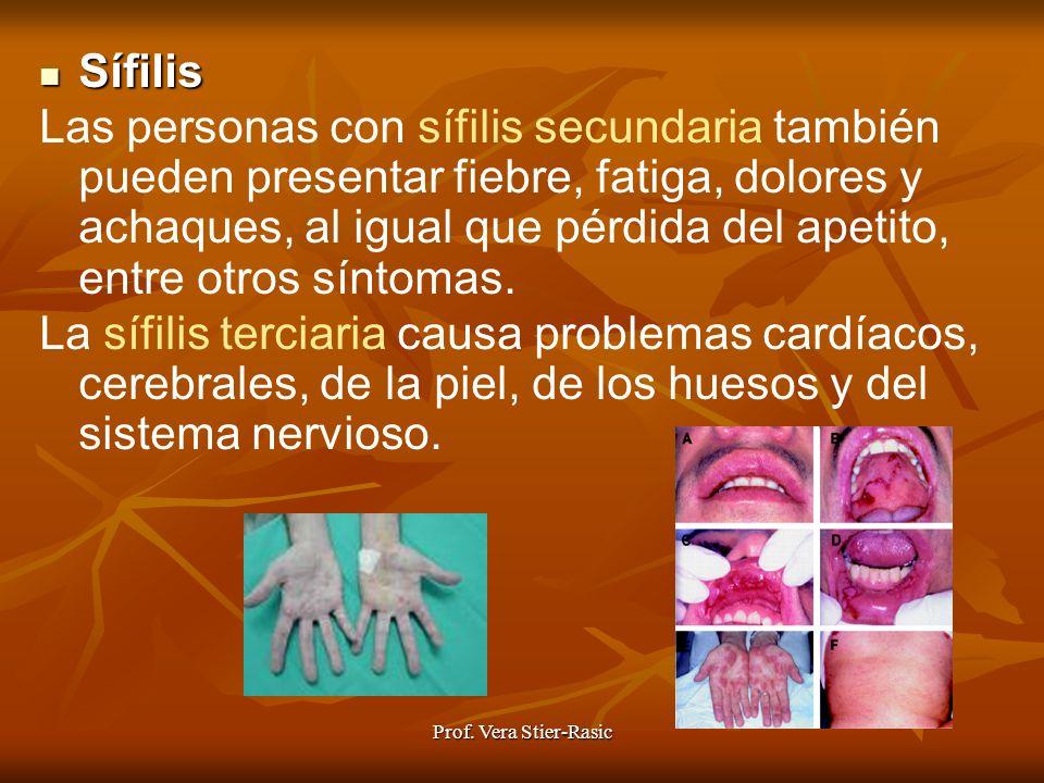 Prof. Vera Stier-Rasic Sífilis Sífilis Las personas con sífilis secundaria también pueden presentar fiebre, fatiga, dolores y achaques, al igual que p