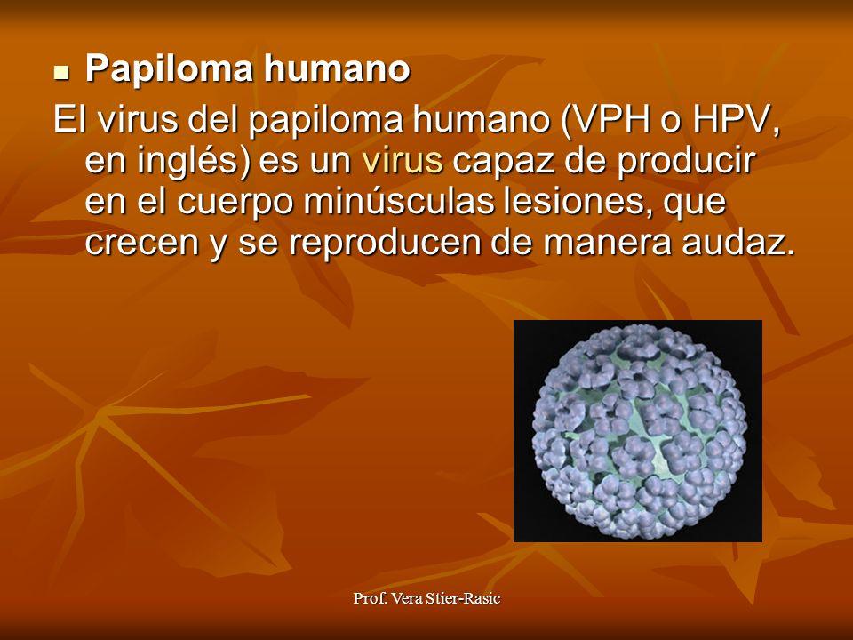 Prof. Vera Stier-Rasic Papiloma Papiloma humano El virus del papiloma humano (VPH o HPV, en inglés) es un virus virus capaz de producir en el cuerpo m