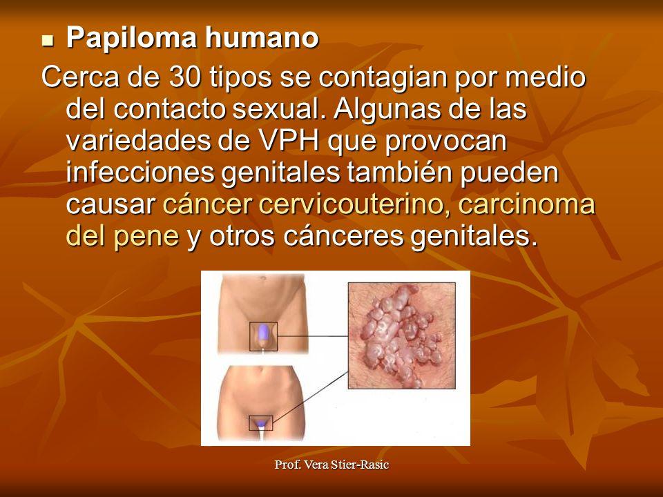 Prof. Vera Stier-Rasic Papiloma Papiloma humano Cerca de 30 tipos se contagian por medio del contacto sexual. Algunas de las variedades de VPH que pro