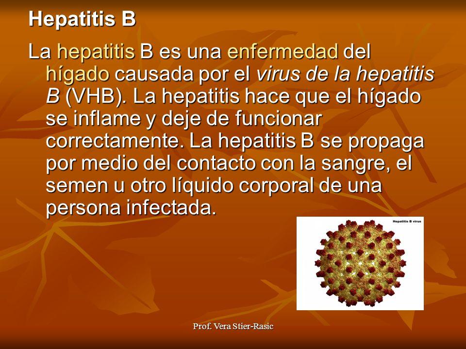 Prof. Vera Stier-Rasic Hepatitis B La hepatitis hepatitis B es una enfermedad enfermedad del hígado hígado causada por el virus de la hepatitis B (VHB