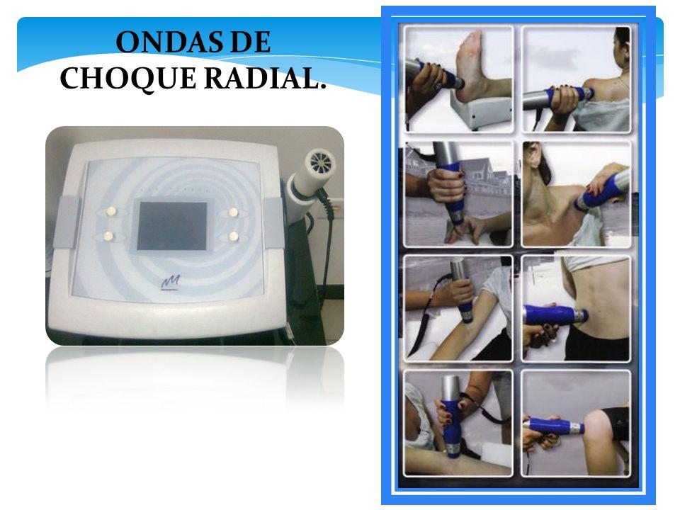 ONDAS DE CHOQUE RADIAL.