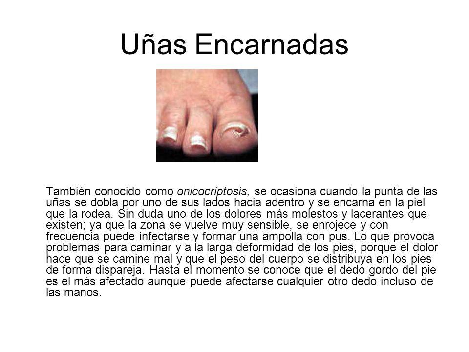 Uñas Encarnadas También conocido como onicocriptosis, se ocasiona cuando la punta de las uñas se dobla por uno de sus lados hacia adentro y se encarna