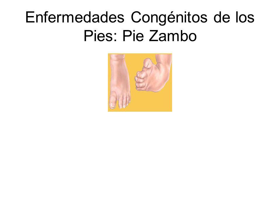 Enfermedades Congénitos de los Pies: Pie Zambo