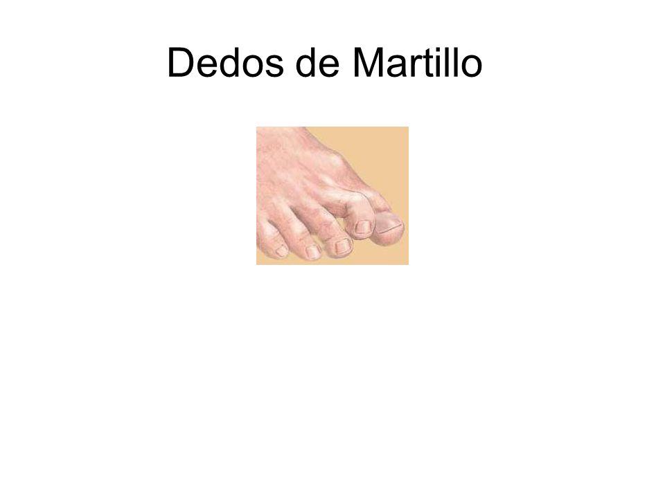 Dedos de Martillo