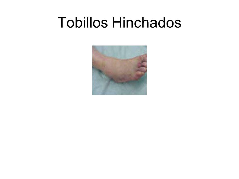 Tobillos Hinchados