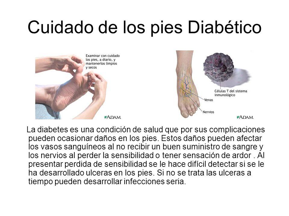 Cuidado de los pies Diabético La diabetes es una condición de salud que por sus complicaciones pueden ocasionar daños en los pies. Estos daños pueden