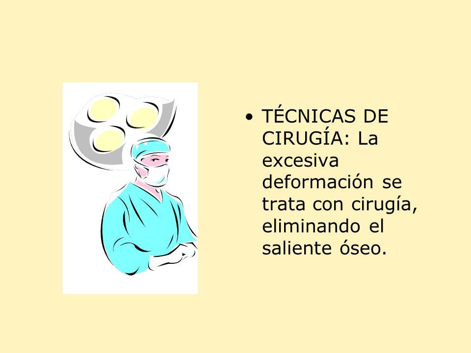 TÉCNICAS DE CIRUGÍA: La excesiva deformación se trata con cirugía, eliminando el saliente óseo.