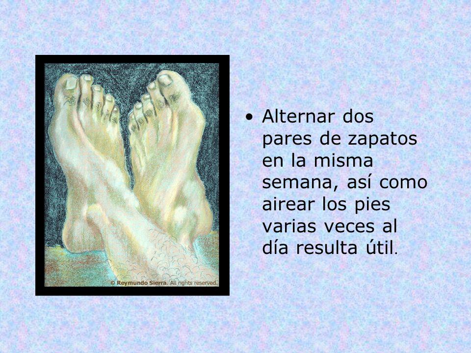 Alternar dos pares de zapatos en la misma semana, así como airear los pies varias veces al día resulta útil.