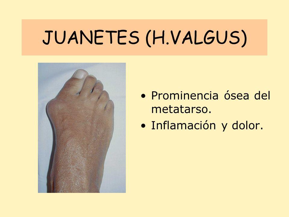 JUANETES (H.VALGUS) Prominencia ósea del metatarso. Inflamación y dolor.