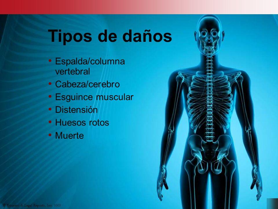 Espalda/columna vertebral Cabeza/cerebro Esguince muscular Distensión Huesos rotos Muerte © Business & Legal Reports, Inc.