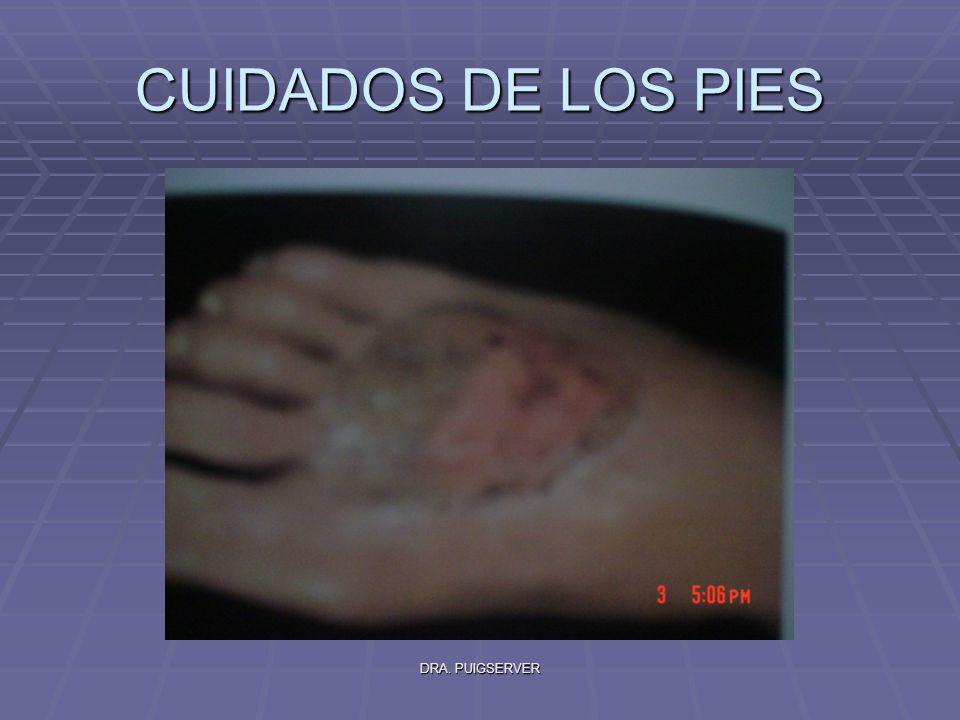 DRA. PUIGSERVER CUIDADOS DE LOS PIES