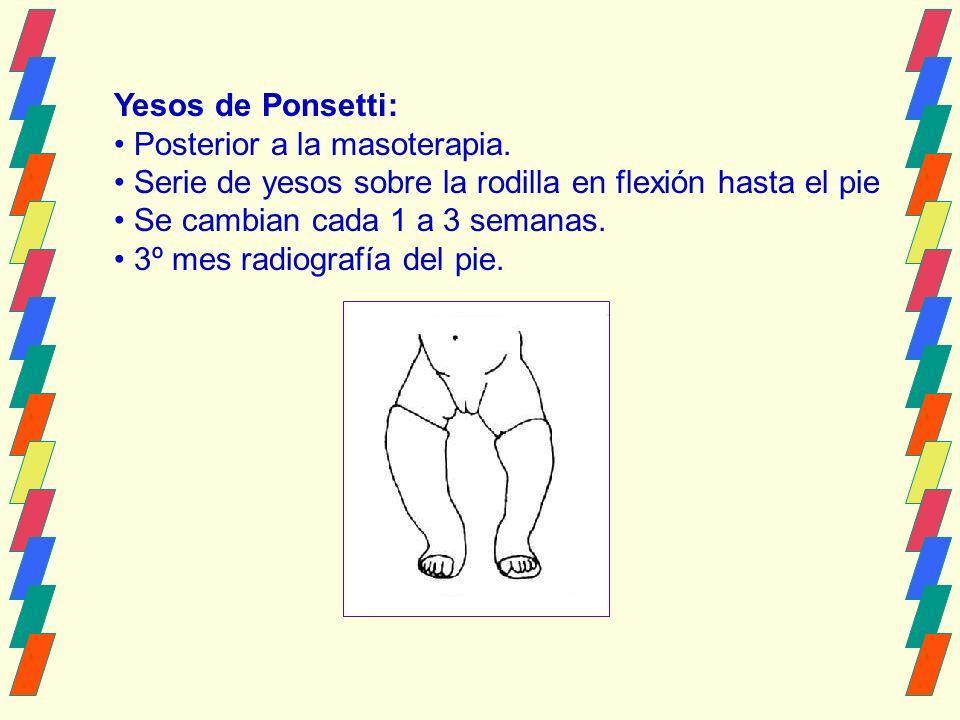 Yesos de Ponsetti: Posterior a la masoterapia.