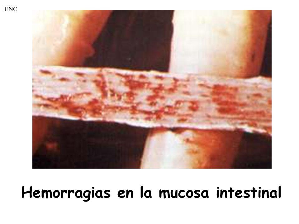 Hemorragias en la mucosa intestinal ENC