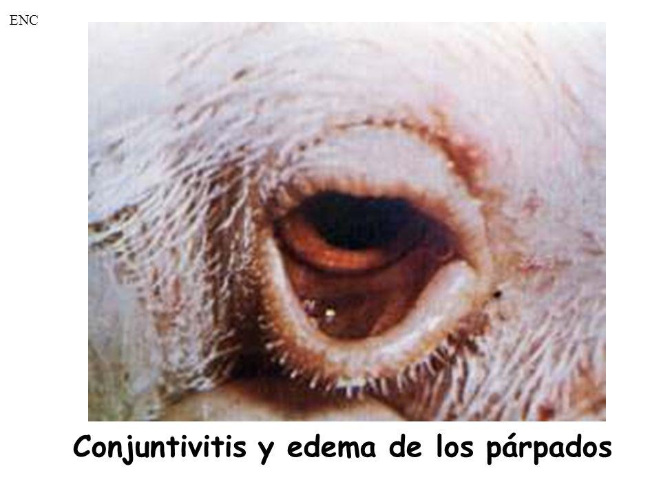 Conjuntivitis y edema de los párpados ENC