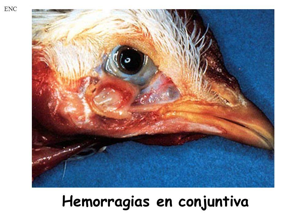 Hemorragias en conjuntiva ENC