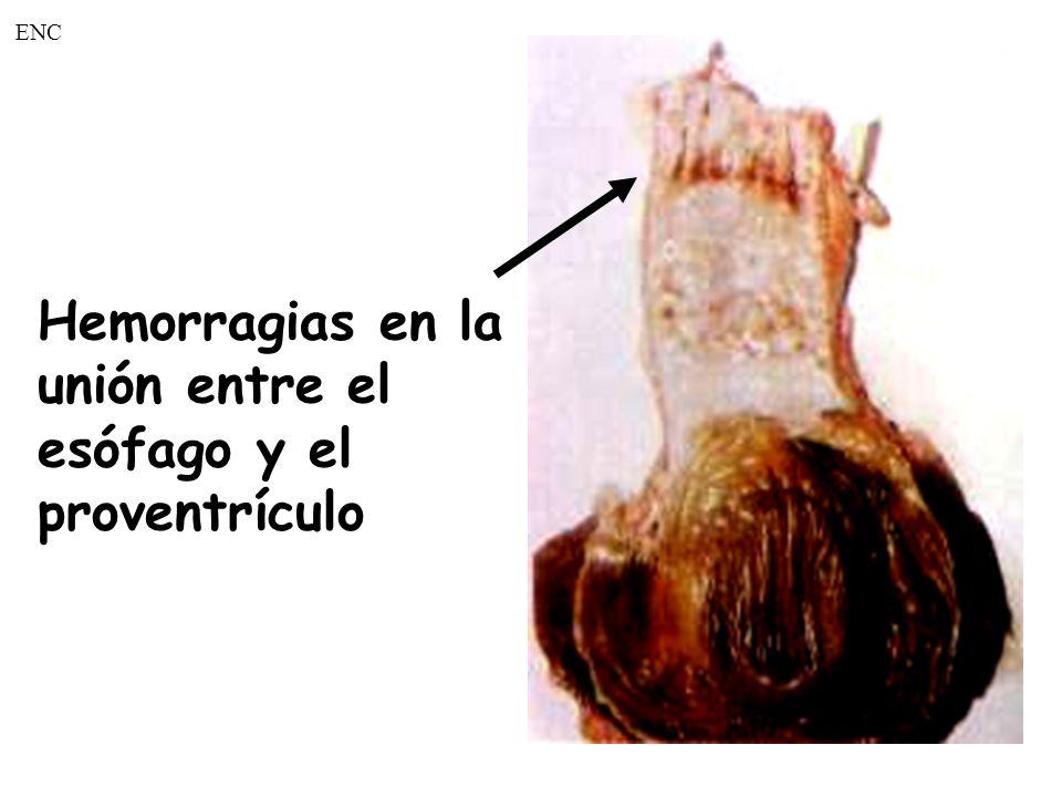 Hemorragias en la unión entre el esófago y el proventrículo ENC