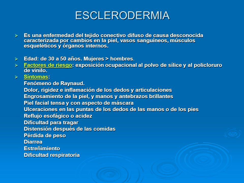 ESCLERODERMIA Es una enfermedad del tejido conectivo difuso de causa desconocida caracterizada por cambios en la piel, vasos sanguíneos, músculos esqu
