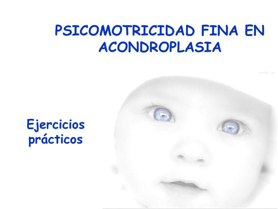 PSICOMOTRICIDAD FINA EN ACONDROPLASIA Ejercicios prácticos