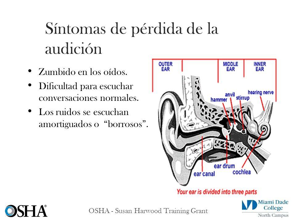 Zumbido en los oídos. Dificultad para escuchar conversaciones normales. Los ruidos se escuchan amortiguados o borrosos. Síntomas de pérdida de la audi