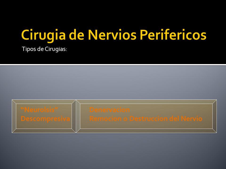 Tipos de Cirugias: Neurolsis Descompresiva Denervacion Remocion o Destruccion del Nervio