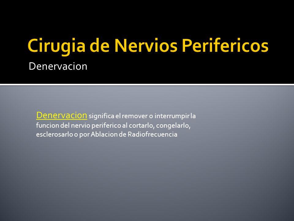 Denervacion Denervacion significa el remover o interrumpir la funcion del nervio periferico al cortarlo, congelarlo, esclerosarlo o por Ablacion de Ra