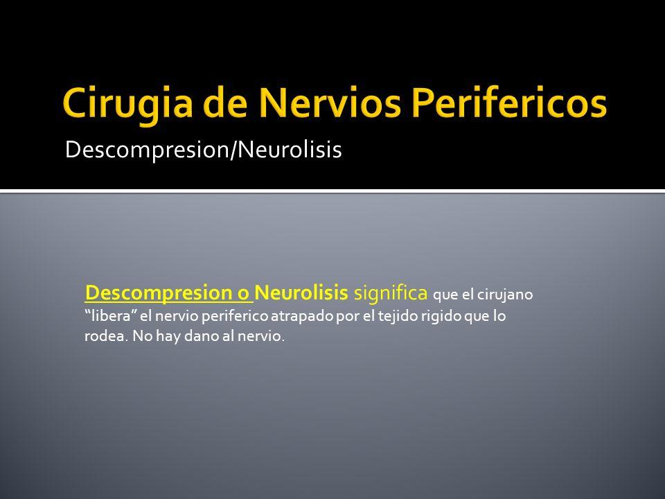 Descompresion/Neurolisis Descompresion o Neurolisis significa que el cirujano libera el nervio periferico atrapado por el tejido rigido que lo rodea.