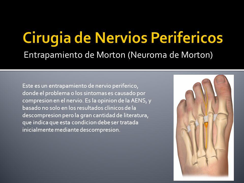 Entrapamiento de Morton (Neuroma de Morton) Este es un entrapamiento de nervio periferico, donde el problema o los sintomas es causado por compresion