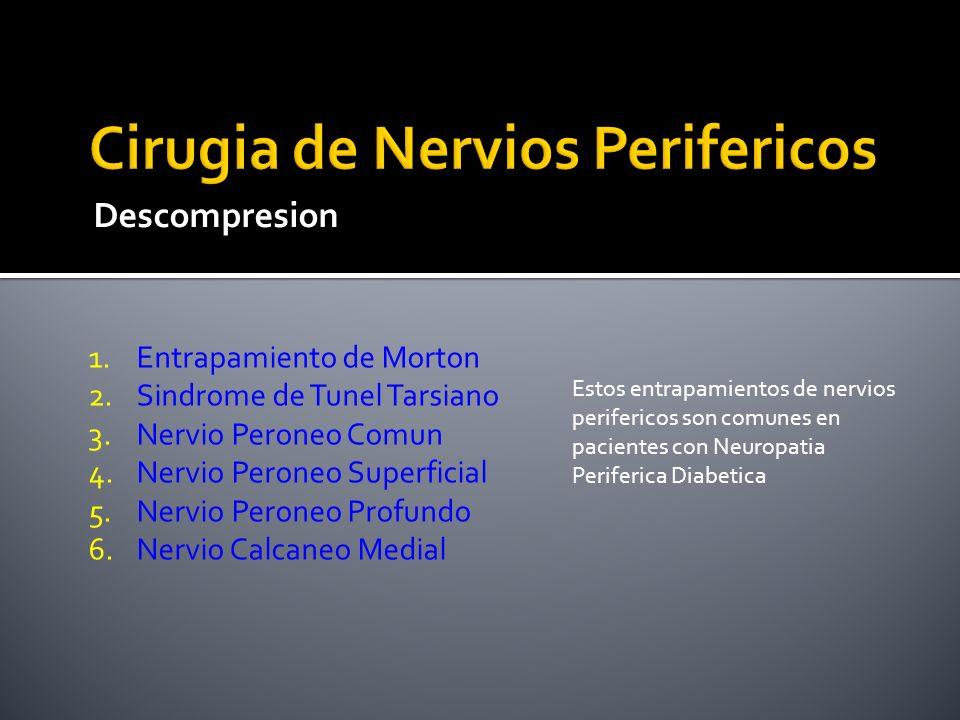 Descompresion 1.Entrapamiento de Morton 2.Sindrome de Tunel Tarsiano 3.Nervio Peroneo Comun 4.Nervio Peroneo Superficial 5.Nervio Peroneo Profundo 6.N