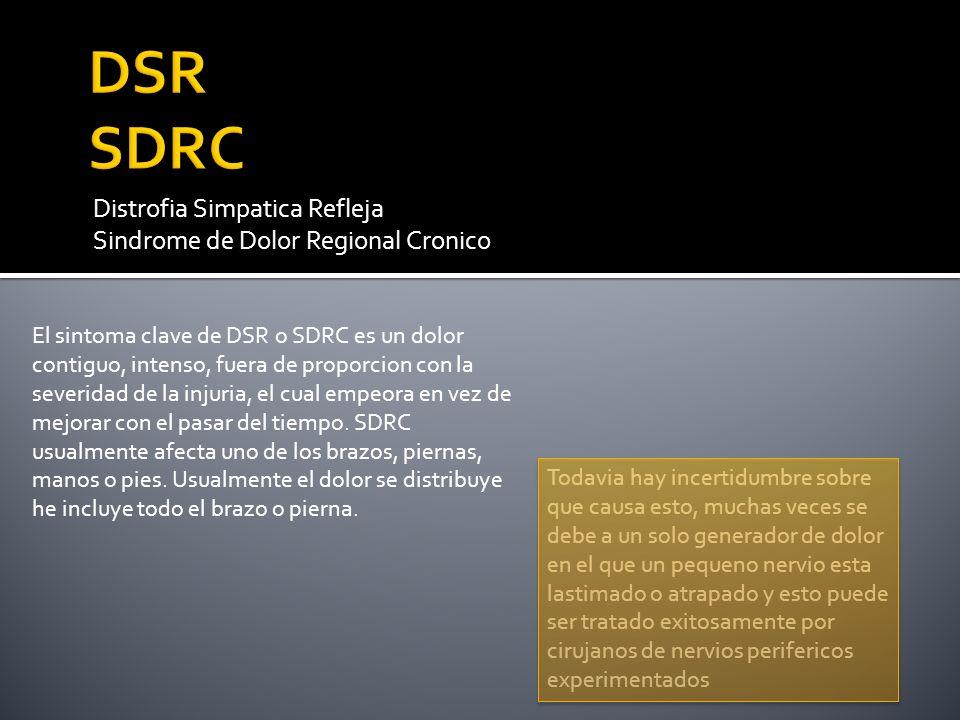 Distrofia Simpatica Refleja Sindrome de Dolor Regional Cronico El sintoma clave de DSR o SDRC es un dolor contiguo, intenso, fuera de proporcion con l