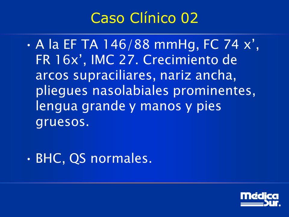 Caso Clínico 02 A la EF TA 146/88 mmHg, FC 74 x, FR 16x, IMC 27. Crecimiento de arcos supraciliares, nariz ancha, pliegues nasolabiales prominentes, l