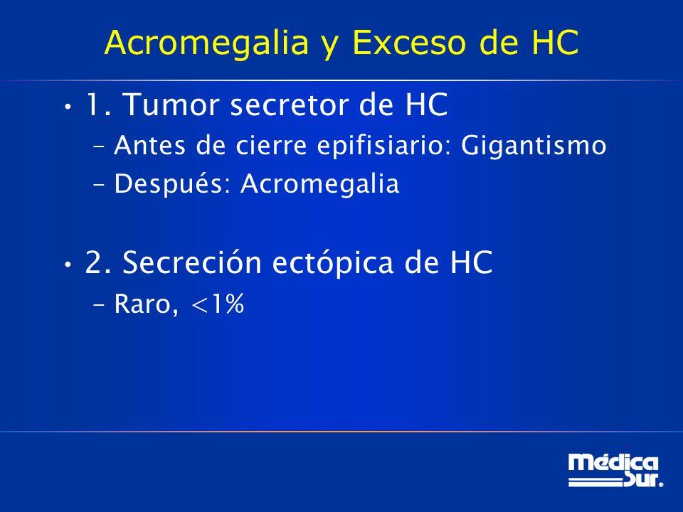 Acromegalia y Exceso de HC 1. Tumor secretor de HC –Antes de cierre epifisiario: Gigantismo –Después: Acromegalia 2. Secreción ectópica de HC –Raro, <