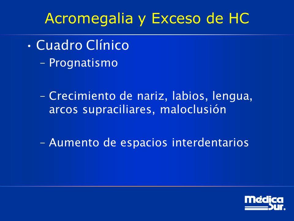 Acromegalia y Exceso de HC Cuadro Clínico –Prognatismo –Crecimiento de nariz, labios, lengua, arcos supraciliares, maloclusión –Aumento de espacios in