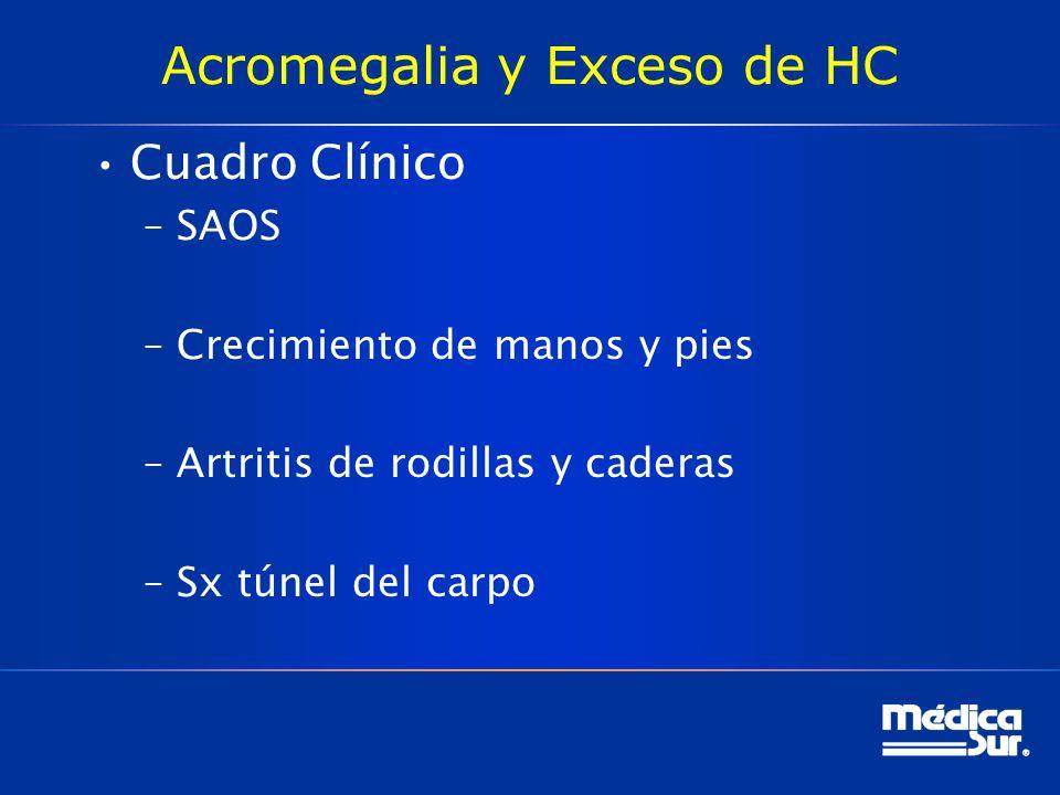 Acromegalia y Exceso de HC Cuadro Clínico –SAOS –Crecimiento de manos y pies –Artritis de rodillas y caderas –Sx túnel del carpo