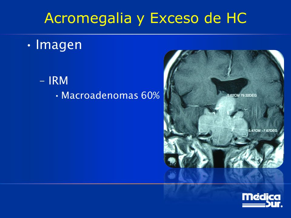 Acromegalia y Exceso de HC Imagen –IRM Macroadenomas 60%