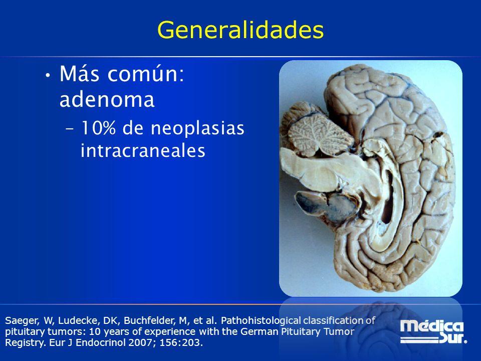 Generalidades Más común: adenoma –10% de neoplasias intracraneales Saeger, W, Ludecke, DK, Buchfelder, M, et al. Pathohistological classification of p