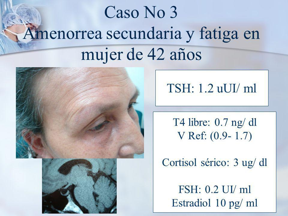 Caso No 3 Amenorrea secundaria y fatiga en mujer de 42 años TSH: 1.2 uUI/ ml T4 libre: 0.7 ng/ dl V Ref: (0.9- 1.7) Cortisol sérico: 3 ug/ dl FSH: 0.2 UI/ ml Estradiol 10 pg/ ml