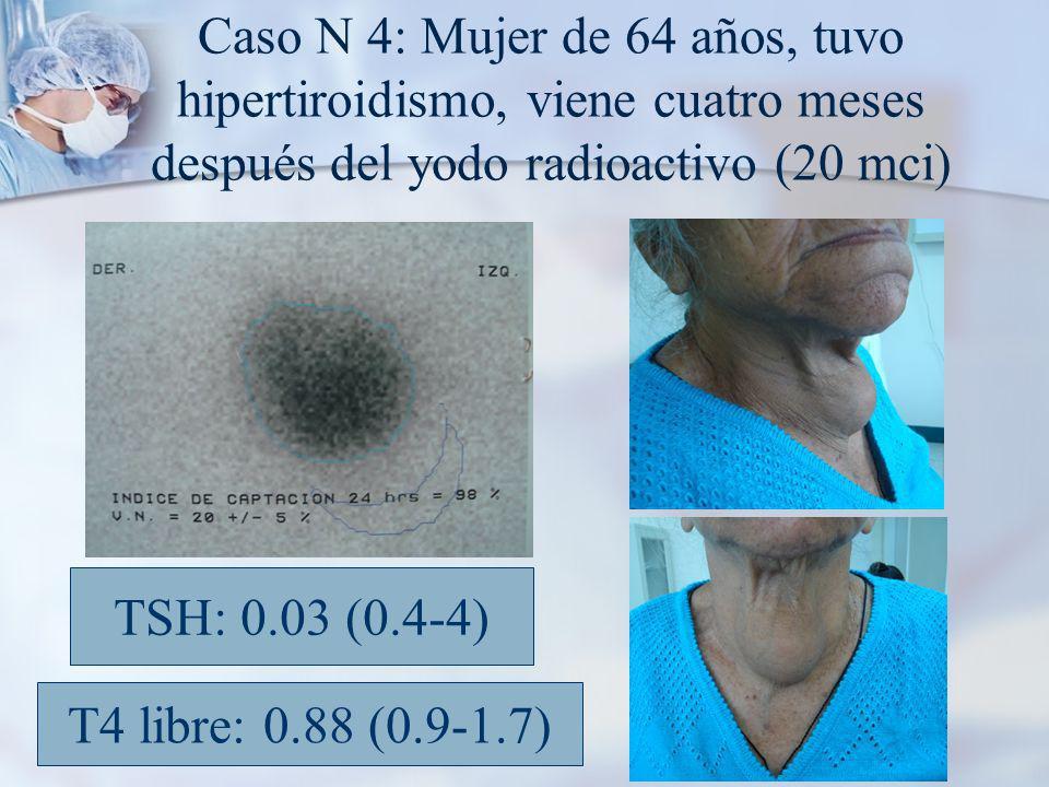 Caso N 4: Mujer de 64 años, tuvo hipertiroidismo, viene cuatro meses después del yodo radioactivo (20 mci) TSH: 0.03 (0.4-4) T4 libre: 0.88 (0.9-1.7)