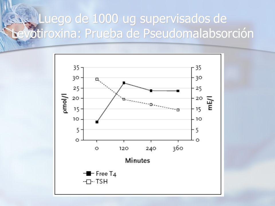 Luego de 1000 ug supervisados de Levotiroxina: Prueba de Pseudomalabsorción
