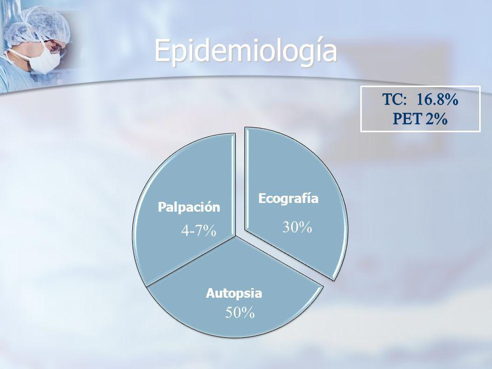 Epidemiología Ecografía Autopsia Palpación 4-7% 30% 50%