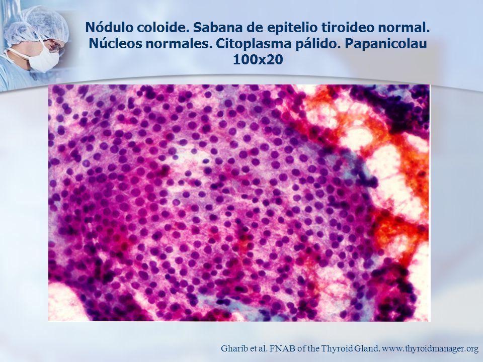 Nódulo coloide.Sabana de epitelio tiroideo normal.