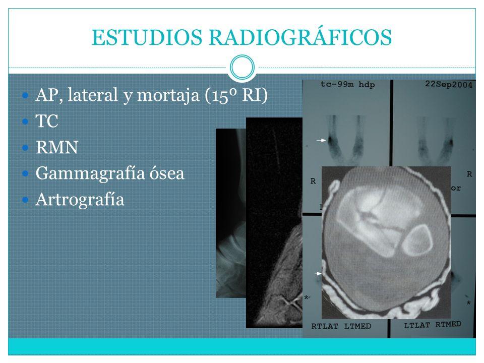 ESTUDIOS RADIOGRÁFICOS AP, lateral y mortaja (15º RI) TC RMN Gammagrafía ósea Artrografía