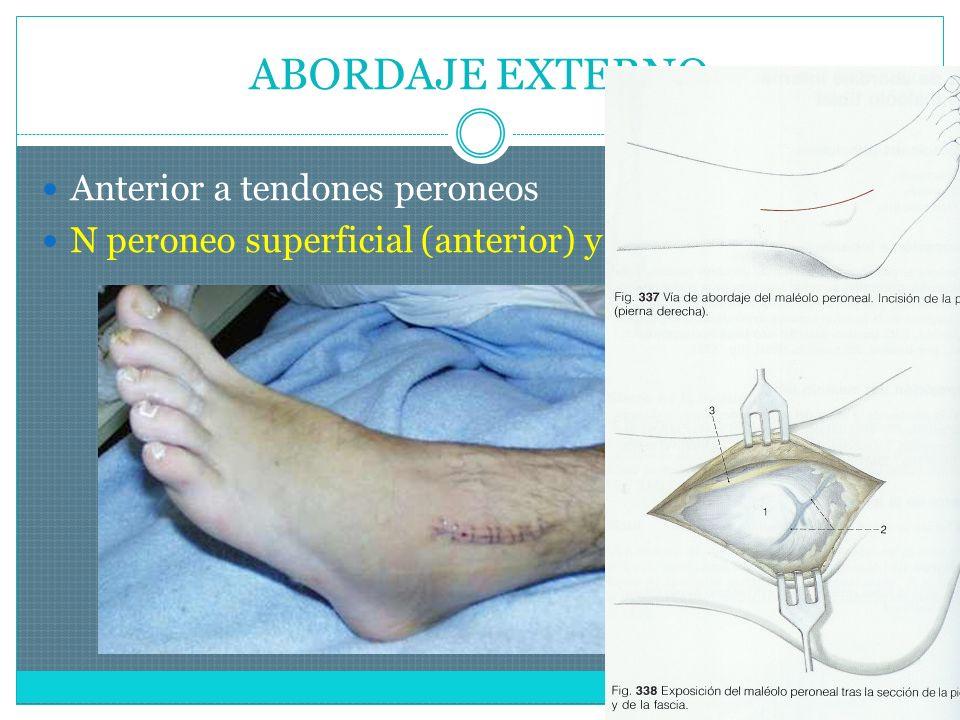 ABORDAJE EXTERNO Anterior a tendones peroneos N peroneo superficial (anterior) y sural (posterior)