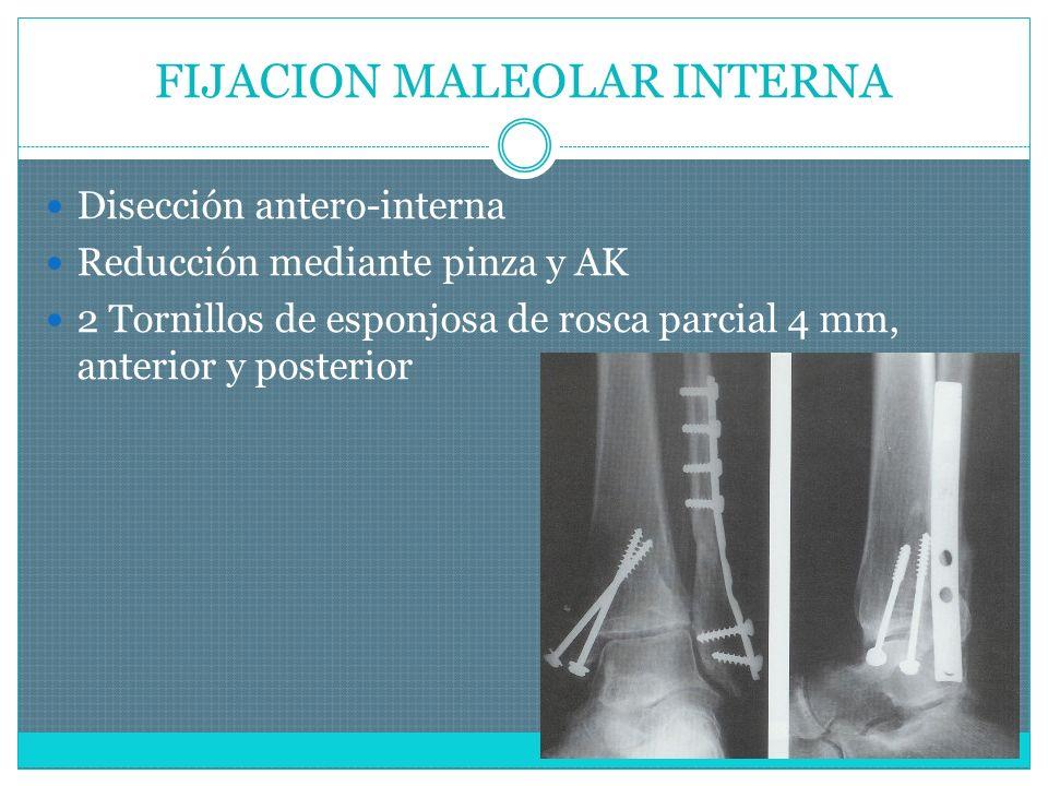 FIJACION MALEOLAR INTERNA Disección antero-interna Reducción mediante pinza y AK 2 Tornillos de esponjosa de rosca parcial 4 mm, anterior y posterior