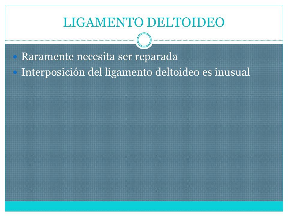 LIGAMENTO DELTOIDEO Raramente necesita ser reparada Interposición del ligamento deltoideo es inusual