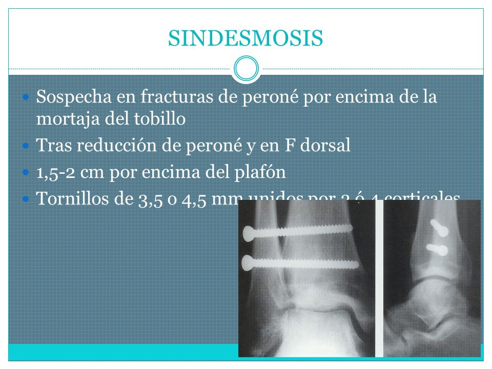 SINDESMOSIS Sospecha en fracturas de peroné por encima de la mortaja del tobillo Tras reducción de peroné y en F dorsal 1,5-2 cm por encima del plafón Tornillos de 3,5 o 4,5 mm unidos por 3 ó 4 corticales