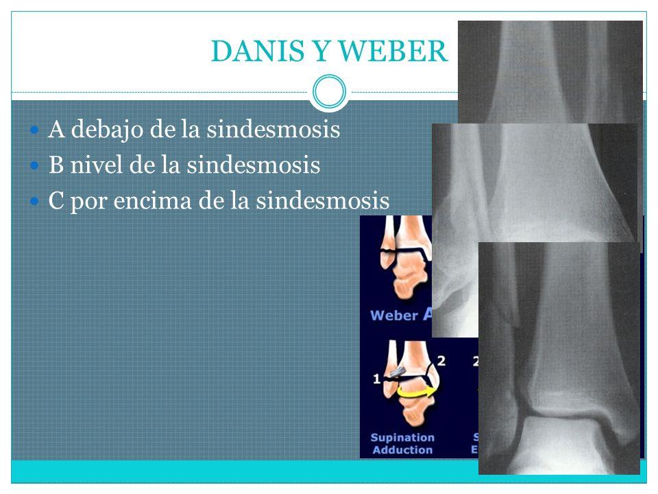 DANIS Y WEBER A debajo de la sindesmosis B nivel de la sindesmosis C por encima de la sindesmosis